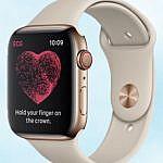apple watch ЭКГ