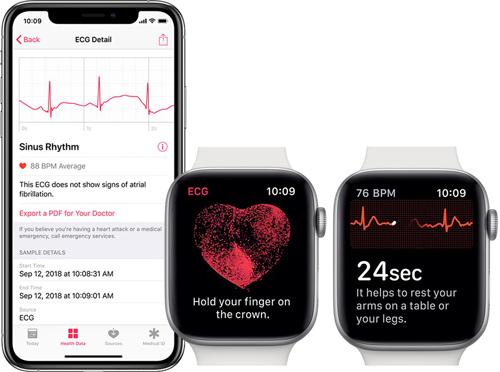 Apple Watch 6 ЭКГ